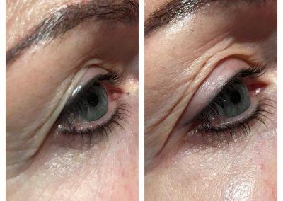 Silver Firming, Serum 4 Eyes und 4 Minutes Lift