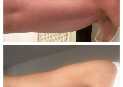 Vor und nach der Behandlung mit ByeBye Cellulite