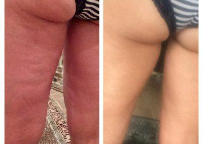 2 Stunden nach der Behandlung mit ByeBye Cellulite (1/3)