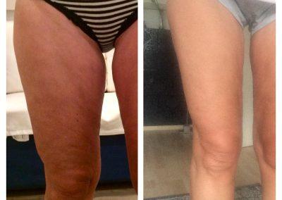 Einen Tag nach Behandlung mit ByeBye Cellulite (3/3)