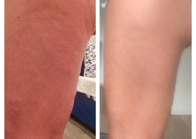 Einen Tag nach Behandlung mit ByeBye Cellulite (2/3)