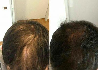 Vor und nach der Behandlung mit Welcome Hair
